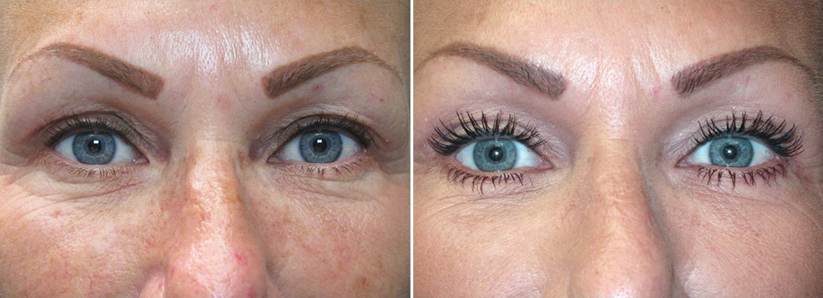 51 year old female patient with upper blepharoplasty, lower blepharoplasty eyelid surgery, and eye bag surgery before and after recovery photo