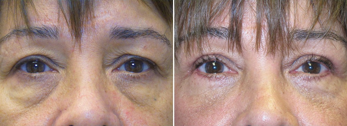 57 year old female patient with upper blepharoplasty, lower blepharoplasty eyelid surgery, eye bag surgery, and canthopexy surgery to lift and suspend drooping or sagging lower eyelids before and after recovery photo