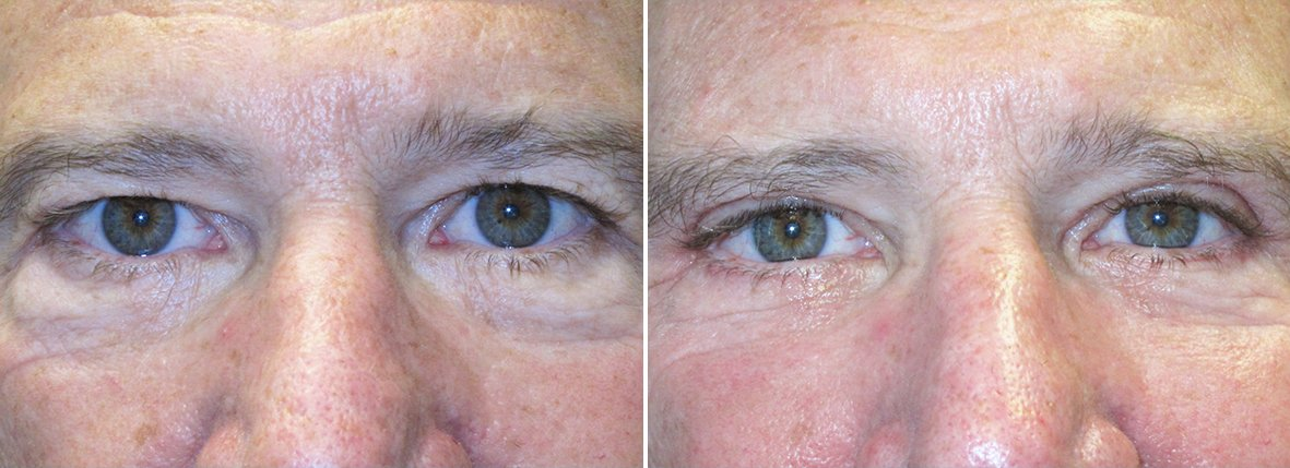 61 year old male patient with upper blepharoplasty, lower blepharoplasty eyelid surgery, and eye bag surgery before and after recovery photo