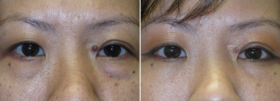 42 year old female patient with lower blepharoplasty eyelid surgery and eye bag surgery before and after recovery photo