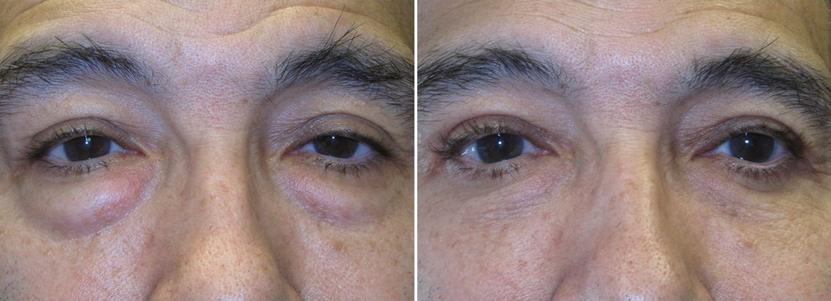 60 year old male patient with upper blepharoplasty, lower blepharoplasty eyelid surgery, eye bag surgery, and ptosis repair before and after recovery photo
