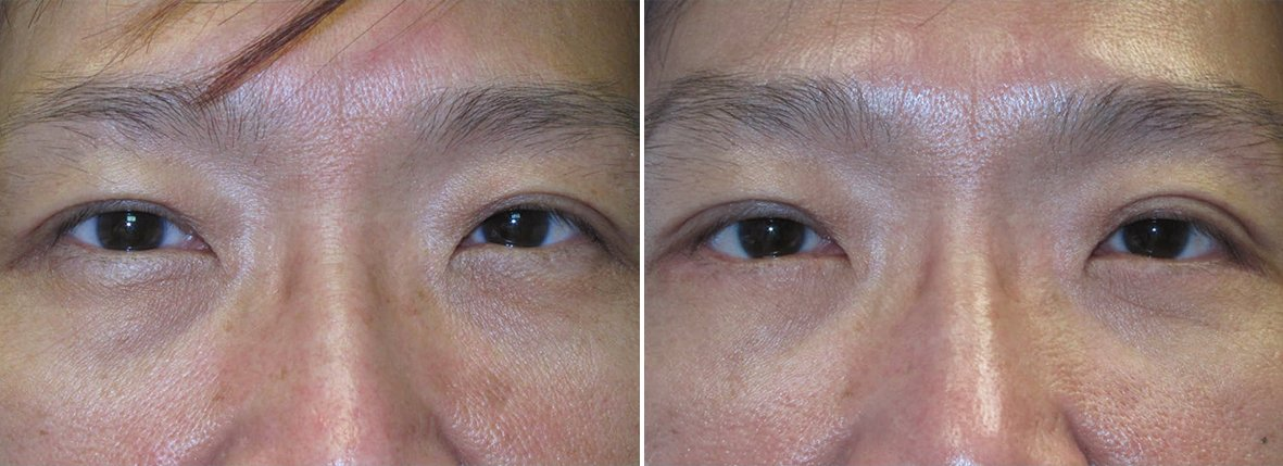 46 year old female patient with lower blepharoplasty eyelid surgery and eye bag surgery before and after recovery photo