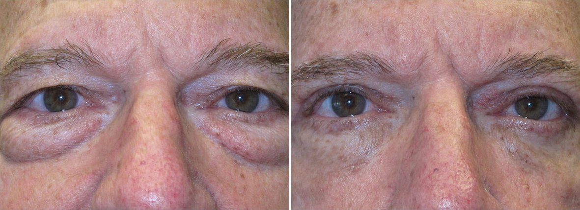69 year old male patient with upper blepharoplasty, lower blepharoplasty eyelid surgery, eye bag surgery, and ptosis repair before and after recovery photo
