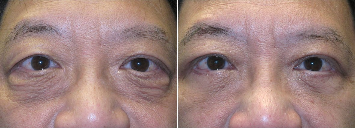 59 year old male patient with upper blepharoplasty, lower blepharoplasty eyelid surgery, eye bag surgery, and canthopexy surgery to lift and suspend drooping or sagging lower eyelids before and after recovery photo