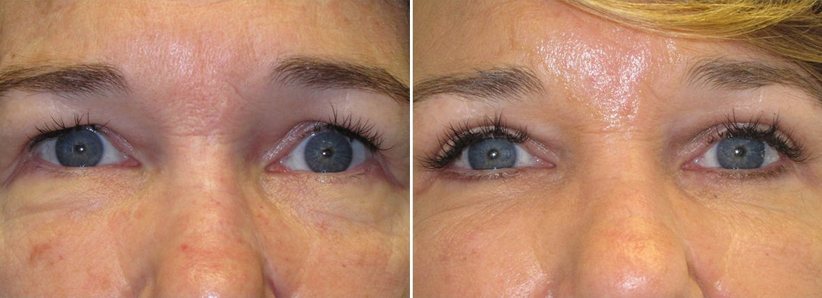 54 year old female patient with upper blepharoplasty, lower blepharoplasty eyelid surgery, and eye bag surgery before and after recovery photo