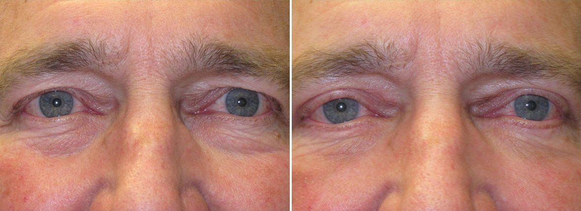 67 year old male patient with upper blepharoplasty, lower blepharoplasty eyelid surgery, and eye bag surgery before and after recovery photo