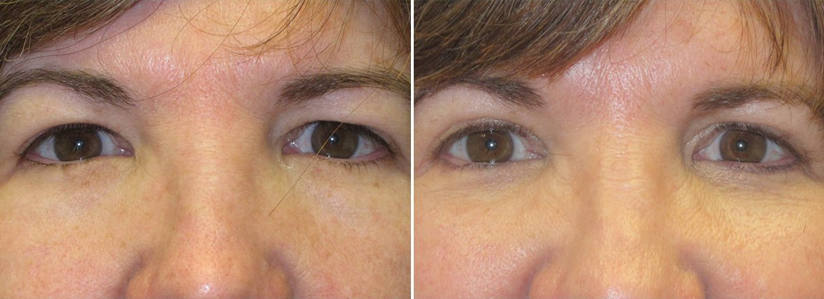53 year old female patient with upper blepharoplasty, lower blepharoplasty eyelid surgery, and eye bag surgery before and after recovery photo