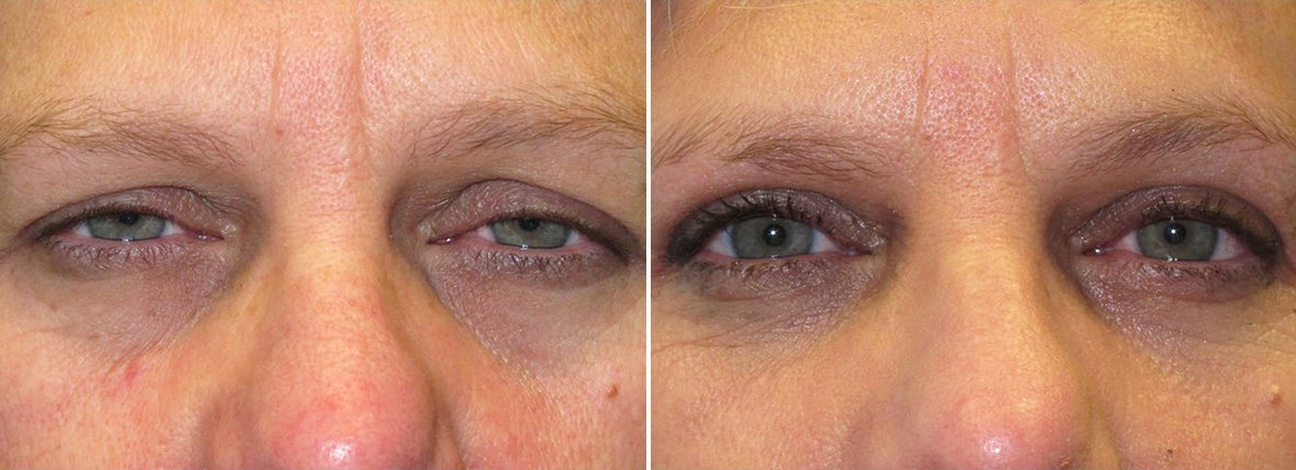 53 year old female patient with upper blepharoplasty, lower blepharoplasty eyelid surgery, eye bag surgery, and ptosis repair before and after recovery photo