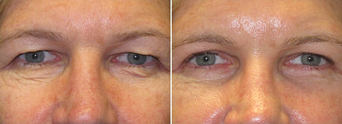 47 year old female patient with upper blepharoplasty, lower blepharoplasty eyelid surgery, and eye bag surgery before and after recovery photo