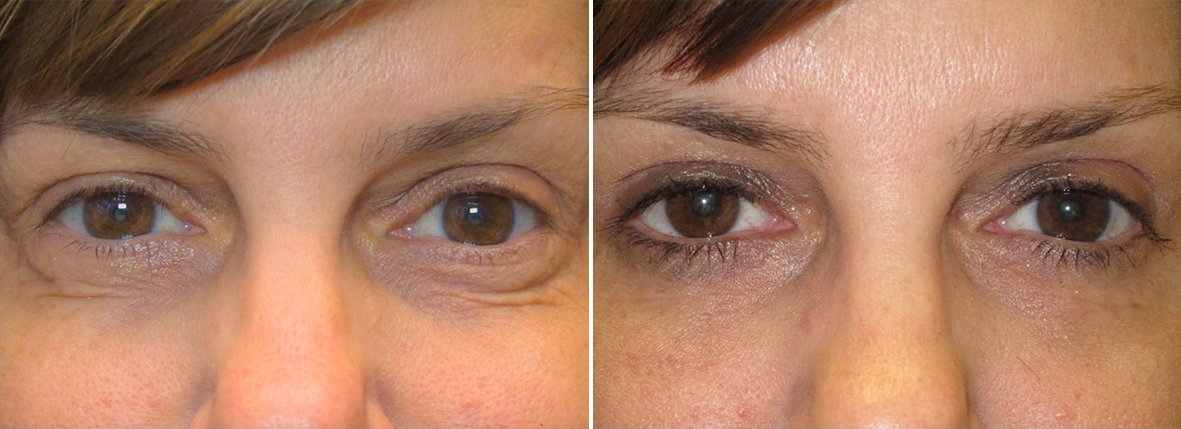 49 year old female patient with upper blepharoplasty, lower blepharoplasty eyelid surgery, and eye bag surgery before and after recovery photo