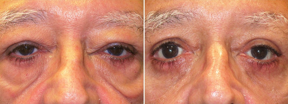 70 year old male patient with upper blepharoplasty, lower blepharoplasty eyelid surgery, eye bag surgery, ptosis repair, and canthopexy surgery to lift and suspend drooping or sagging lower eyelids before and after recovery photo