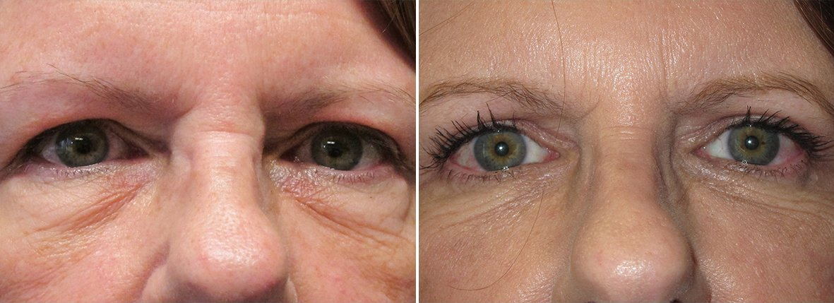 57 year old female patient with upper blepharoplasty, lower blepharoplasty eyelid surgery, and eye bag surgery before and after recovery photo