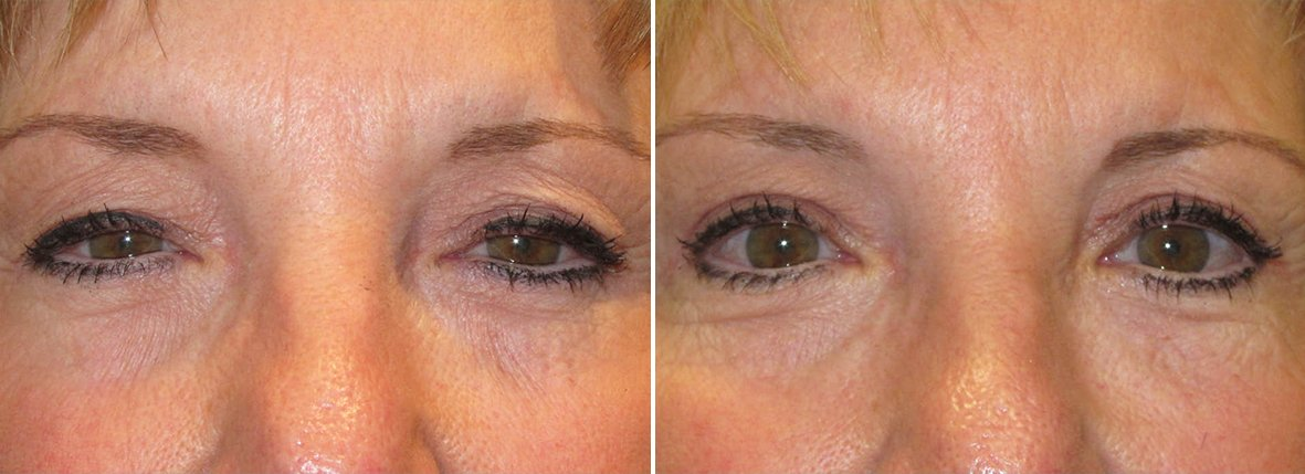 61 year old female patient with upper blepharoplasty eyelid surgery and ptosis repair before and after recovery photo