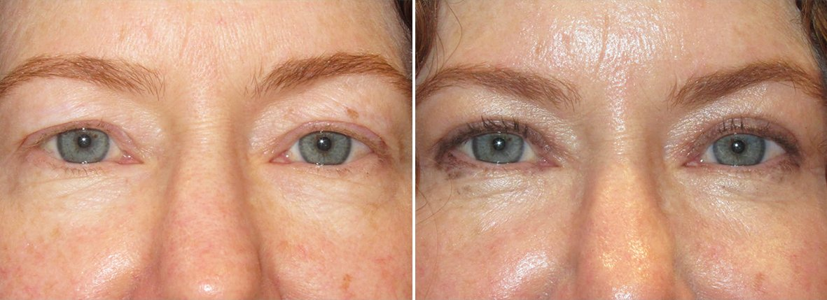 51 year old female patient with upper blepharoplasty eyelid surgery before and after recovery photo