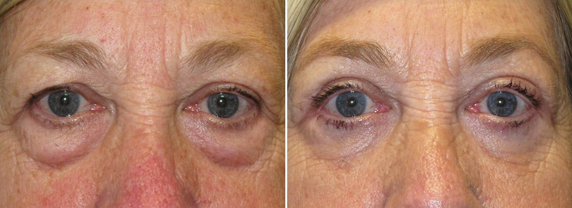 71 year old female patient with upper blepharoplasty, lower blepharoplasty eyelid surgery, eye bag surgery, and canthoplasty surgery before and after recovery photo