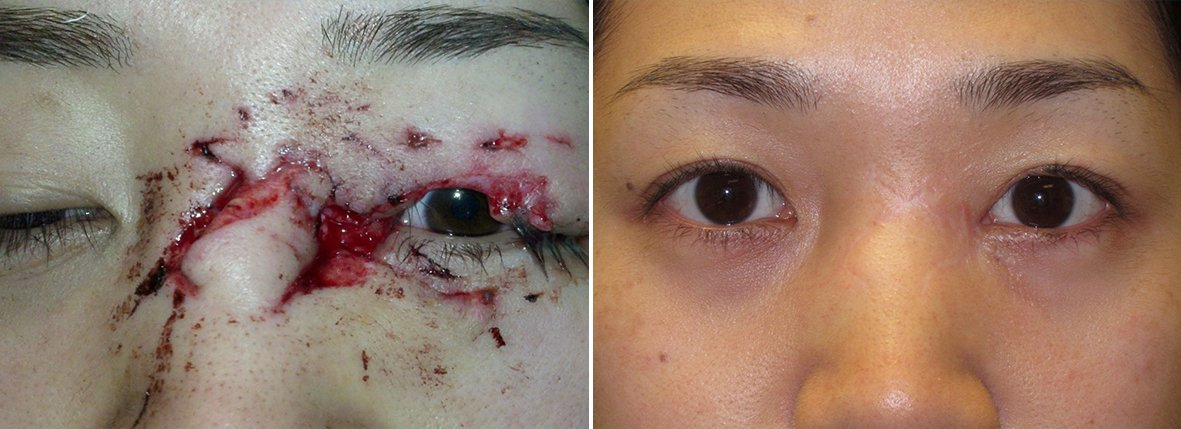Before and after recovery photo of 30 year old Asian female patient with dog bite eye trauma eye bag surgery, and canthoplasty