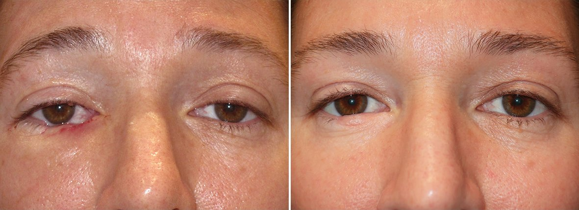Before and after recovery photo of 42 year old female patient with eyelid skin cancer. Dr. Stout performed eyelid skin cancer reconstruction on right lower lid due to skin cancer basal cell carcinoma