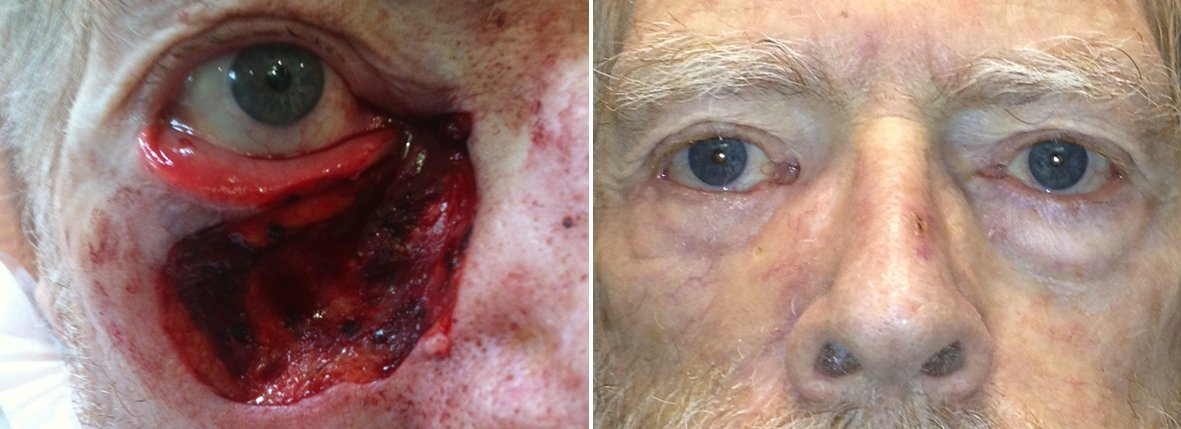 Before and after recovery photo of 80 year old male patient with eyelid skin cancer reconstruction
