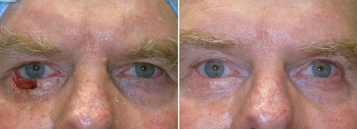 Before and after recovery photo of 60 year old male patient with eyelid skin cancer. Dr. Stout performed eyelid skin cancer reconstruction on right lower lid due to skin cancer basal cell carcinoma