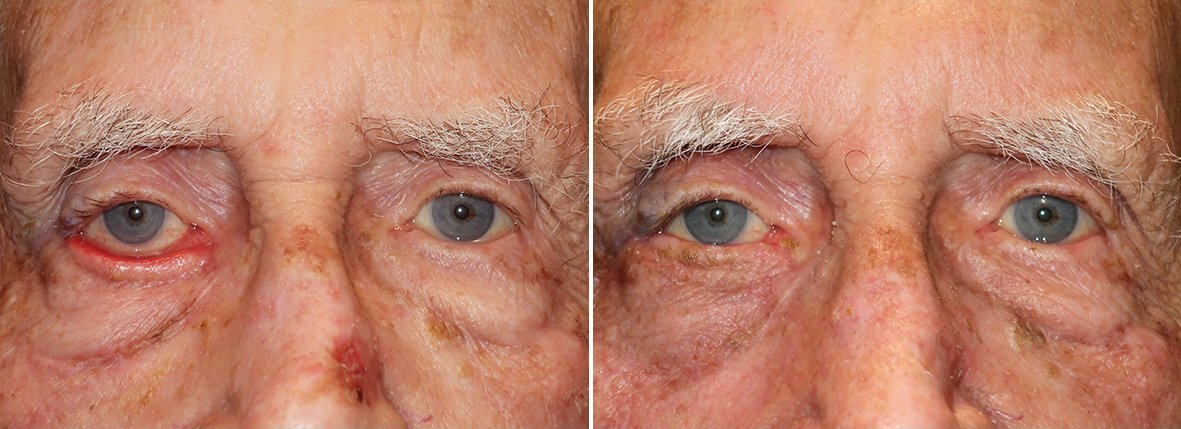 Before and after recovery photo of 83 year old male patient with right lower eyelid ectropion repair