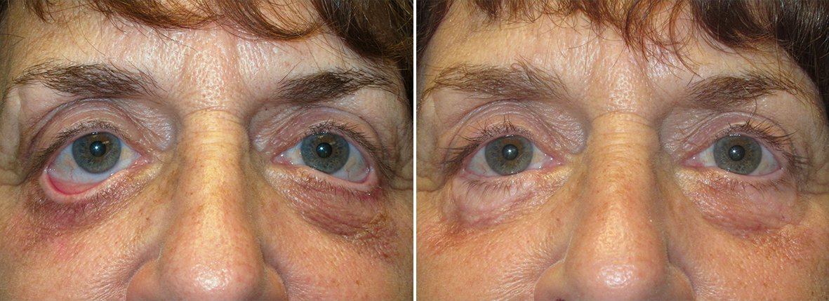 67 year old female patient with lower lid pulled down and canthoplasty