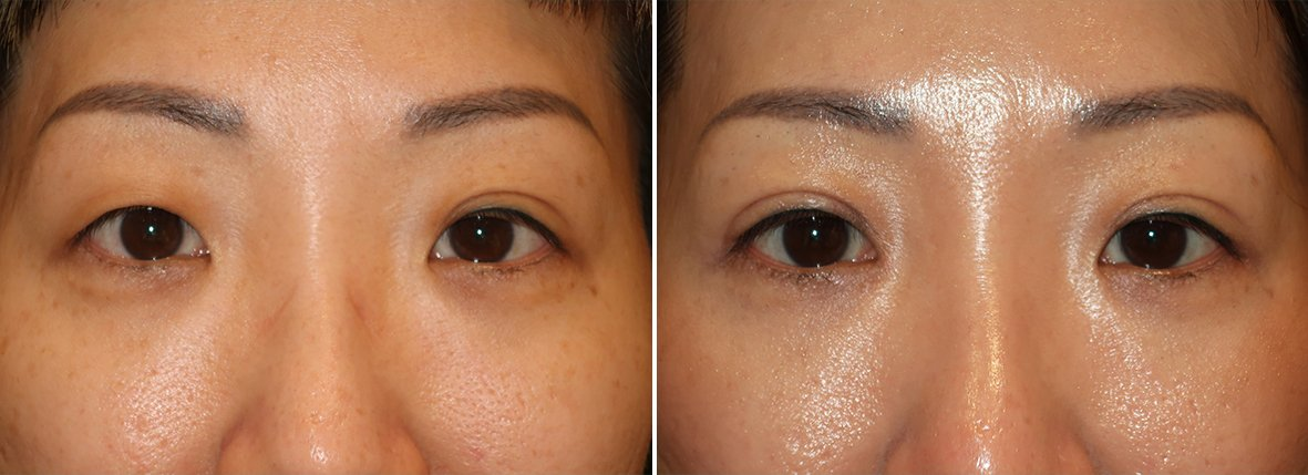 Before and after recovery photo of 38 year old female patient with right upper eyelid blepharoplasty, right double eyelid surgery, right epicanthoplasty