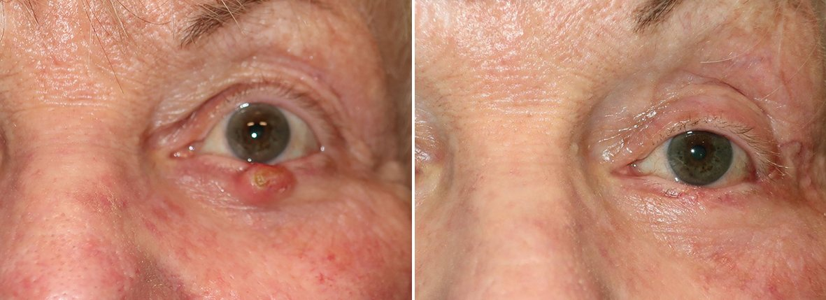 Before and after recovery photo of 74 year old female patient with eyelid skin cancer reconstruction on left lower lid