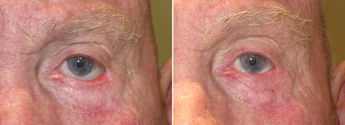 Before and after recovery photo of 76 year old male patient with left lower eyelid ectropion repair