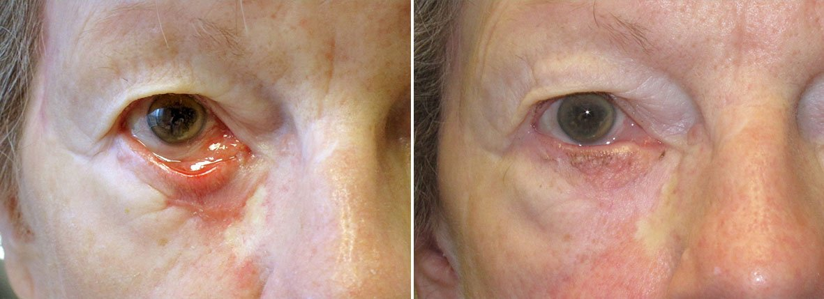 Before and after recovery photo of 81 year old female patient with right lower eyelid ectropion repair