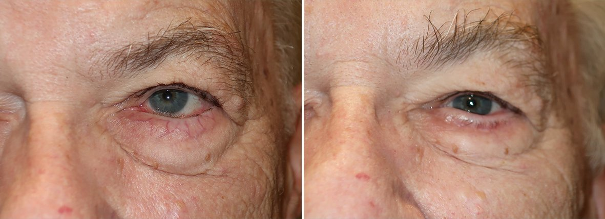 Before and after recovery photo of 77 year old male patient with left lower eyelid entropion repair. Dr. Stout reset the lower lashline from turning inward and rubbing on the eye to its natural neutral position