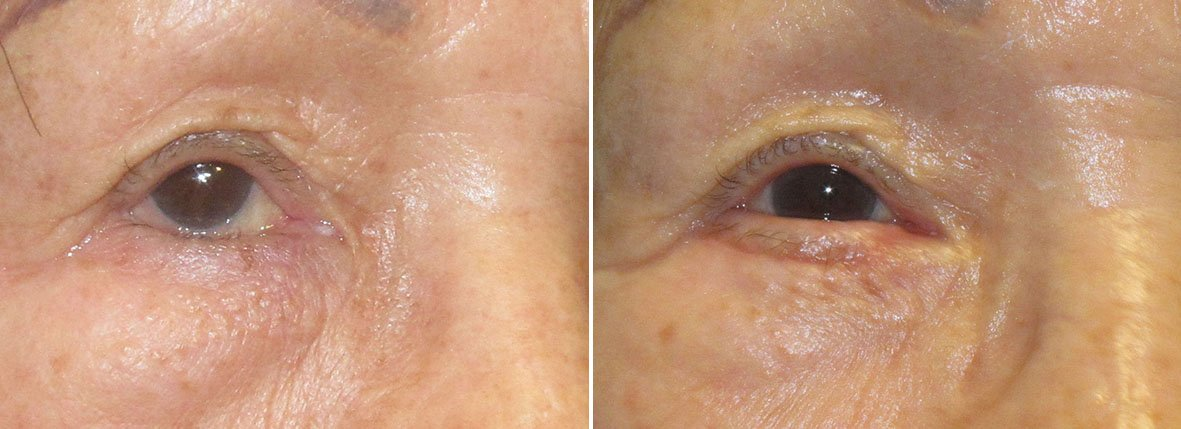 Before and after recovery photo of 76 year old asian female patient with right lower eyelid entropion repair. Dr. Stout reset the lower lashline from turning inward and rubbing on the eye to its natural neutral position
