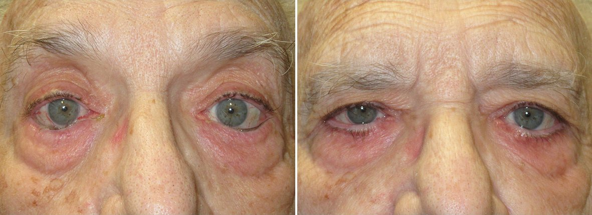 Before and after recovery photo of 88 year old male patient with lower eyelids entropion repair