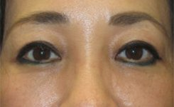 After Asian Female Blepharoplasty