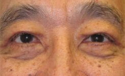 After Asian Male Blepharoplasty Procedure