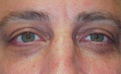 Before Dark Circles Eye Treatment