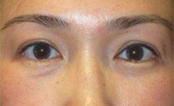 upper eyelid ptosis - after eye asymmetry procedure
