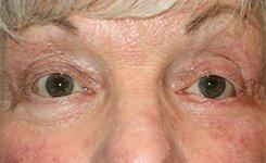 Eyelid Skin Cancer Reconstruction After Photo