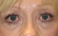 After Female Blepharoplasty Procedure