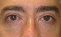 After Male Blepharoplasty Procedure