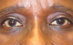 After Droopy Sleepy Eyes Procedure