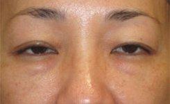 Before Asian Female Blepharoplasty