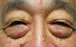 Before Asian Male Blepharoplasty Procedure