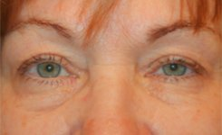 Before Canthoplasty Procedure Patient Photograph