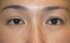 upper eyelid ptosis - before eye asymmetry procedure