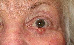 Eyelid Skin Cancer Reconstruction Before Photo