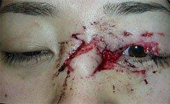 Eyelid Trauma Before Procedure Photo