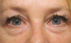 Before Tired Looking Baggy Eye Procedure
