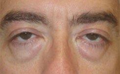 Before Male Blepharoplasty Procedure