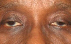 Before Droopy Sleepy Eyes Procedure